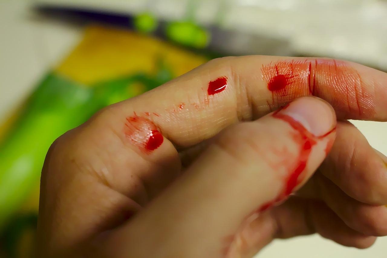 Blutung